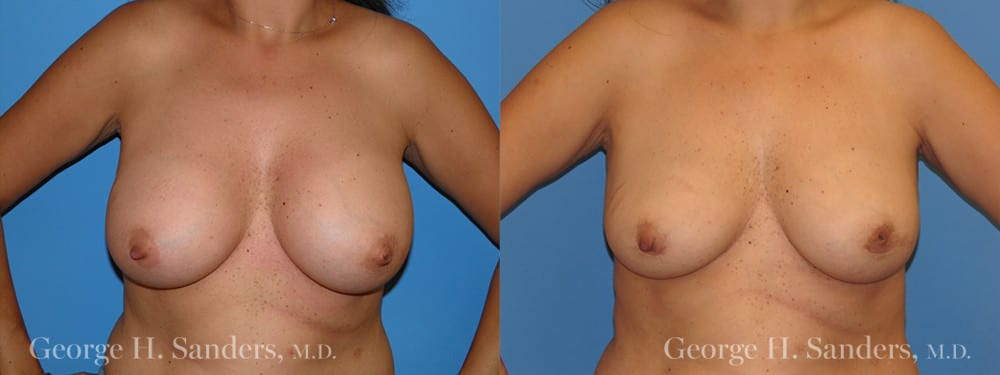 Patient 2a Implant Removal Before and After