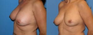 Patient 2b Implant Removal Before and After