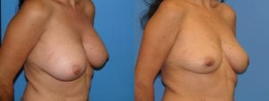 Patient 2c Implant Removal Before and After