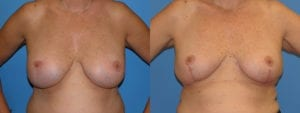 Patient 3a Implant Removal Before and After