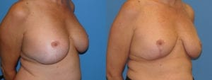 Patient 3c Implant Removal Before and After