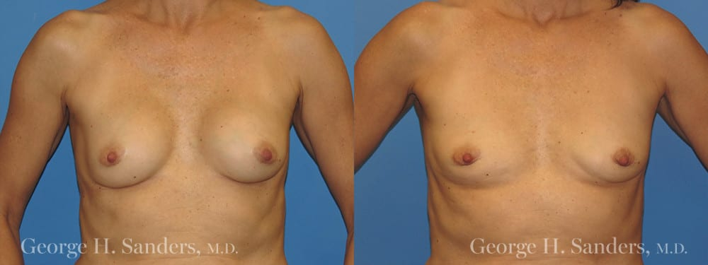 Patient 4a Implant Removal Before and After
