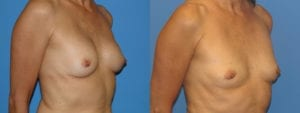 Patient 4b Implant Removal Before and After