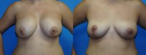 Patient 5a Implant Removal Before and After