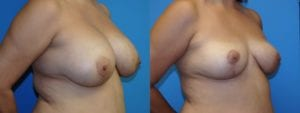 Patient 5b Implant Removal Before and After