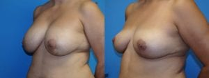 Patient 5c Implant Removal Before and After