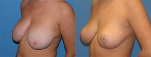 Patient 1b Breast Reduction Before and After