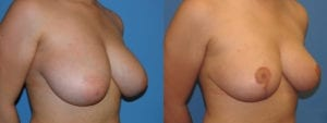 Patient 2c Breast Reduction Before and After