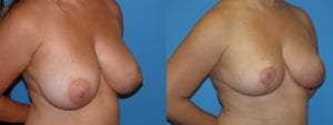 Patient 3b Breast Reduction Before and After