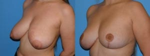 Patient 5c Breast Reduction Before and After