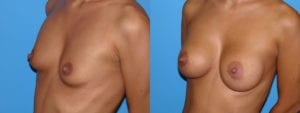 Patient 4b Breast Augmentation Before and After