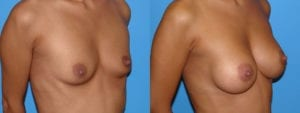 Patient 4c Breast Augmentation Before and After