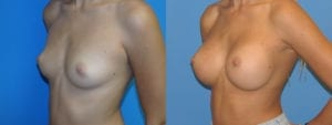 Patient 5b Breast Augmentation Before and After