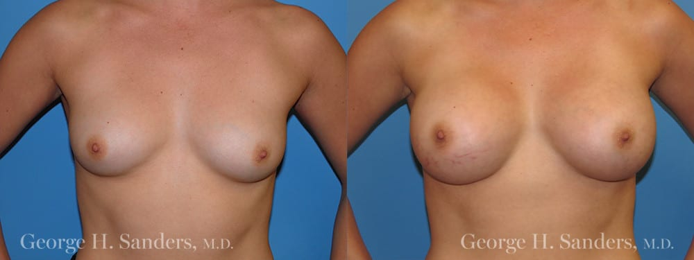 Patient 6a Breast Augmentation Before and After
