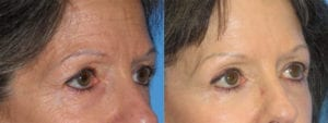 Patient 1b Brow Lift Before and After