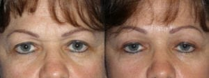 Patient 2b Brow Lift Before and After