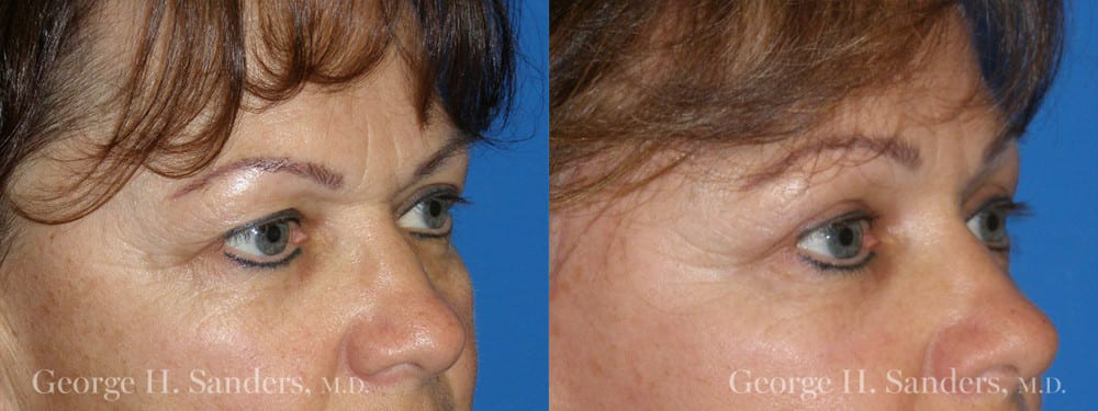 Patient 2a Brow Lift Before and After