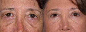 Patient 3a Brow Lift Before and After