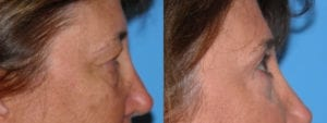 Patient 3b Brow Lift Before and After