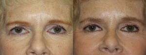 Patient 4a Brow Lift Before and After