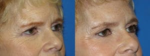 Patient 4b Brow Lift Before and After