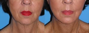 Patient 2b Chin Augmentation Before and After