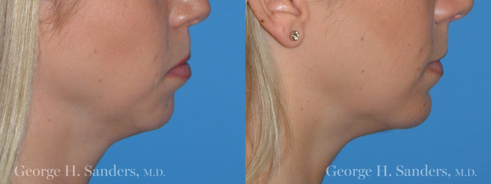 Patient 5a Chin Augmentation Before and After