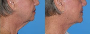 Patient 6b Chin Augmentation Before and After