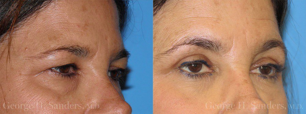 Patient 1b Eyelid Surgery Before and After