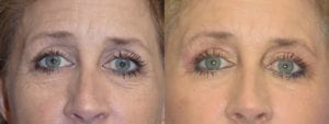 Patient 2a Eyelid Surgery Before and After