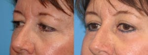 Patient 4b Eyelid Surgery Before and After