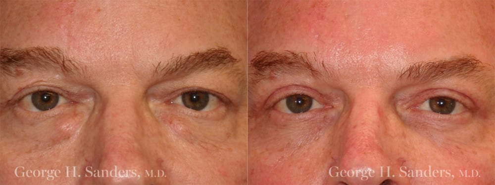 Patient 1a Male Eyelid surgery
