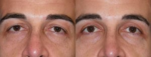 Patient 2a Male Eyelid surgery