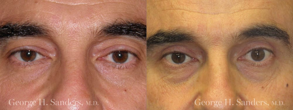Patient 3a Male Eyelid surgery