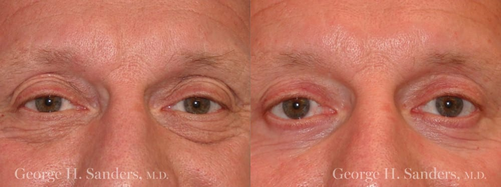 Patient 4a Male Eyelid surgery