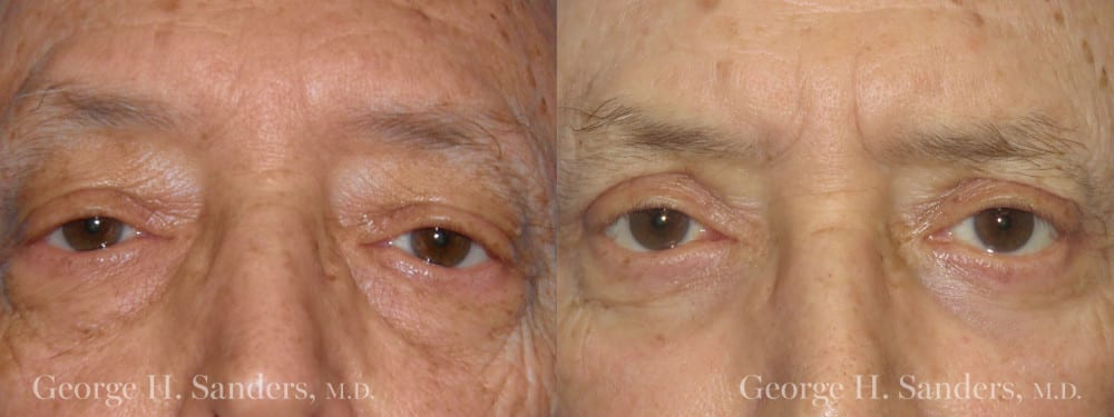 Patient 5a Male Eyelid surgery