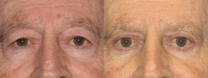 Patient 6a Male Eyelid surgery