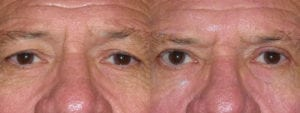 Patient 7a Male Eyelid surgery