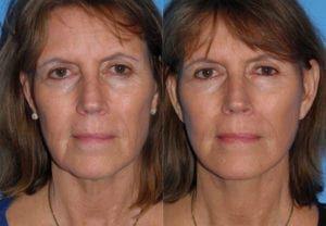 Patient 1a Face Lift Before and After