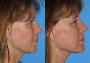 Patient 1b Face Lift Before and After
