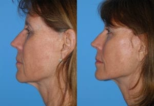 Patient 1c Face Lift Before and After