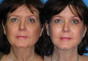 Patient 2a Face Lift Before and After