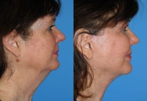 Patient 2b Face Lift Before and After
