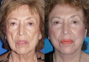 Patient 3a Face Lift Before and After