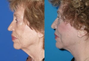 Patient 3b Face Lift Before and After