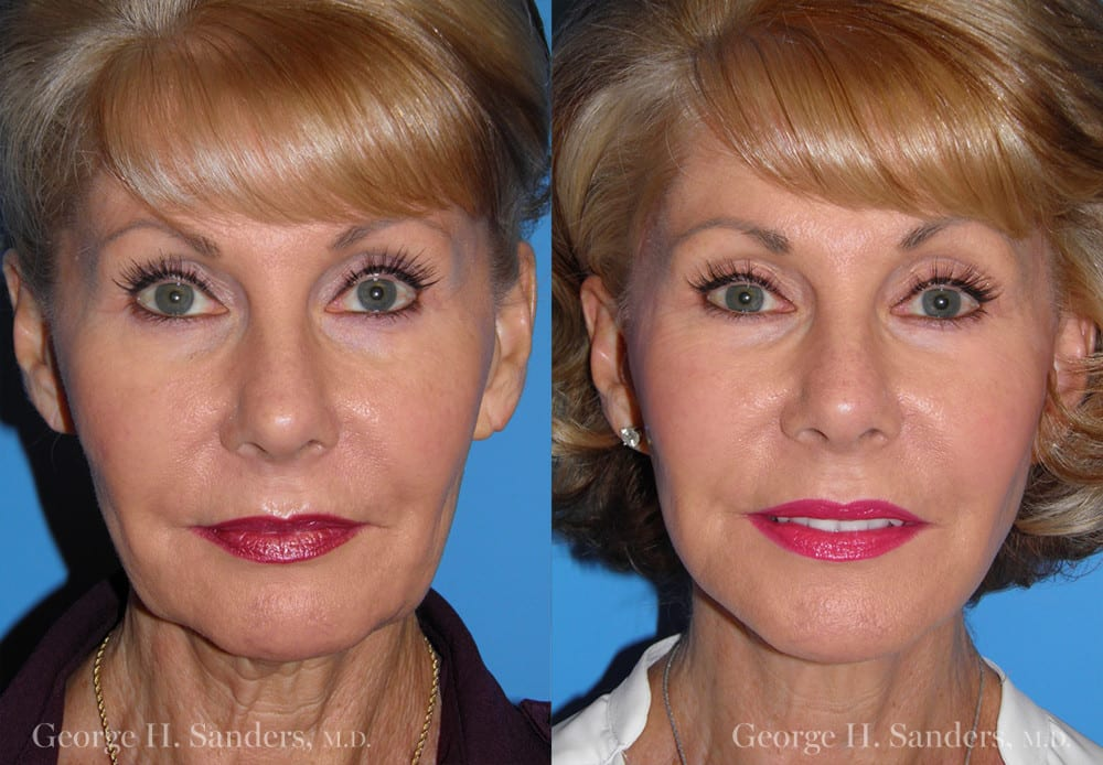 Patient 4a Face Lift Before and After