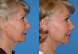 Patient 4b Face Lift Before and After