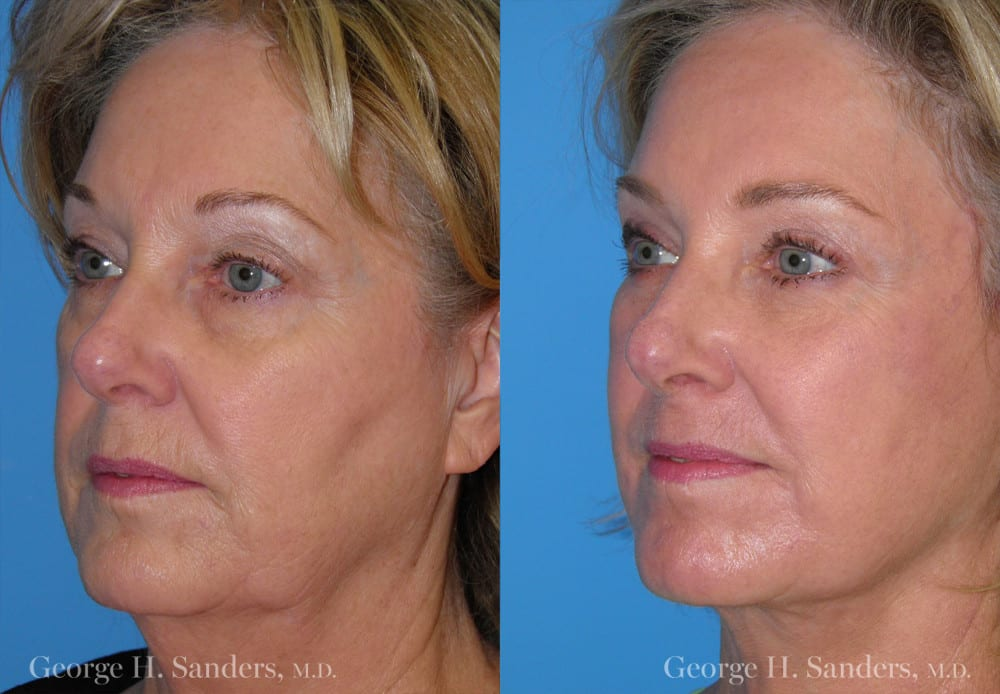 oblique view of before and after photo of a woman who received a facelift