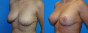 Patient 1c Breast Lift Before and After