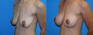Patient 2b Breast Lift Before and After